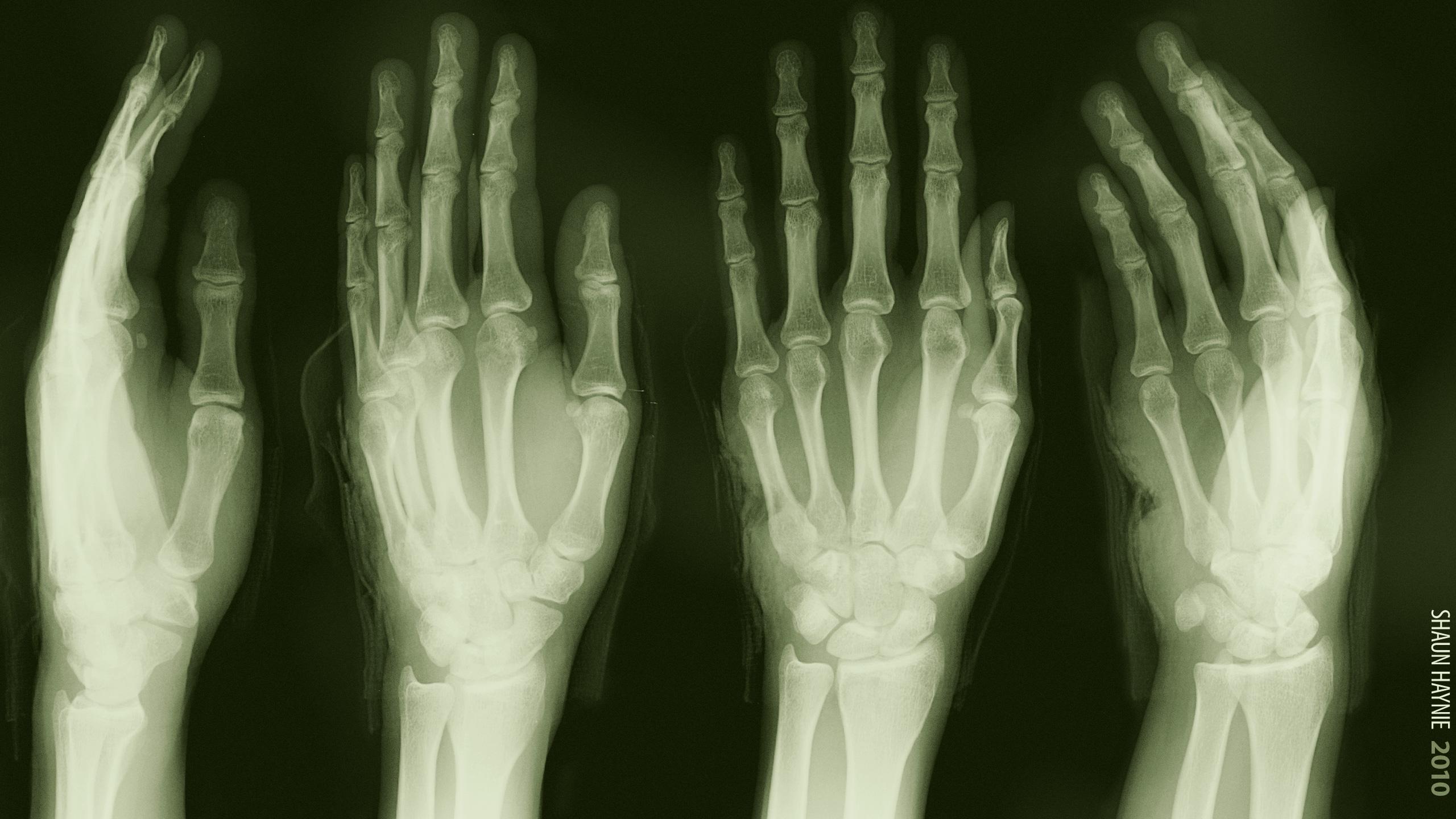 Dark   Skeleton Medical Green Hand X ray Wallpaper 2560x1440