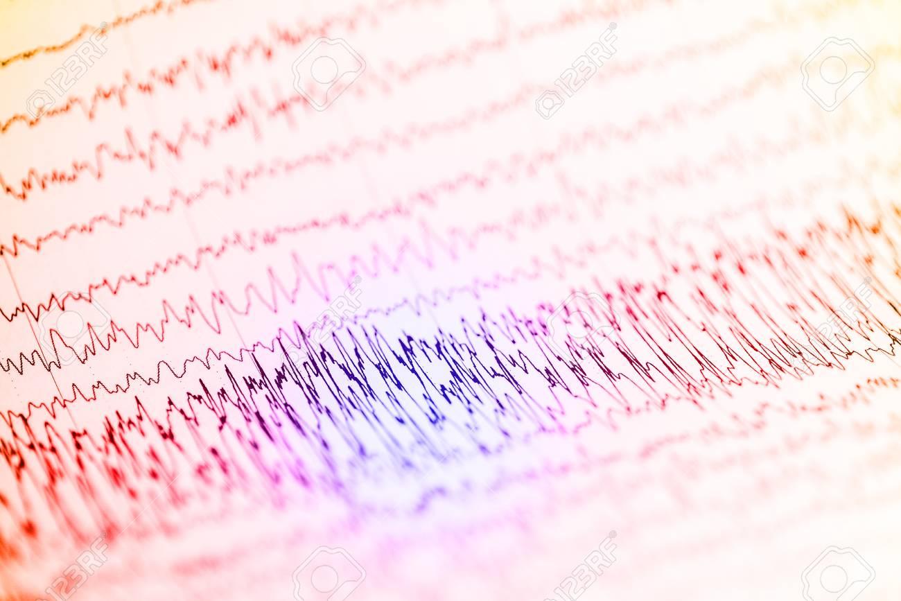 Abnormal EEG Waveform Abnormal EEG Brainwave On 1300x867