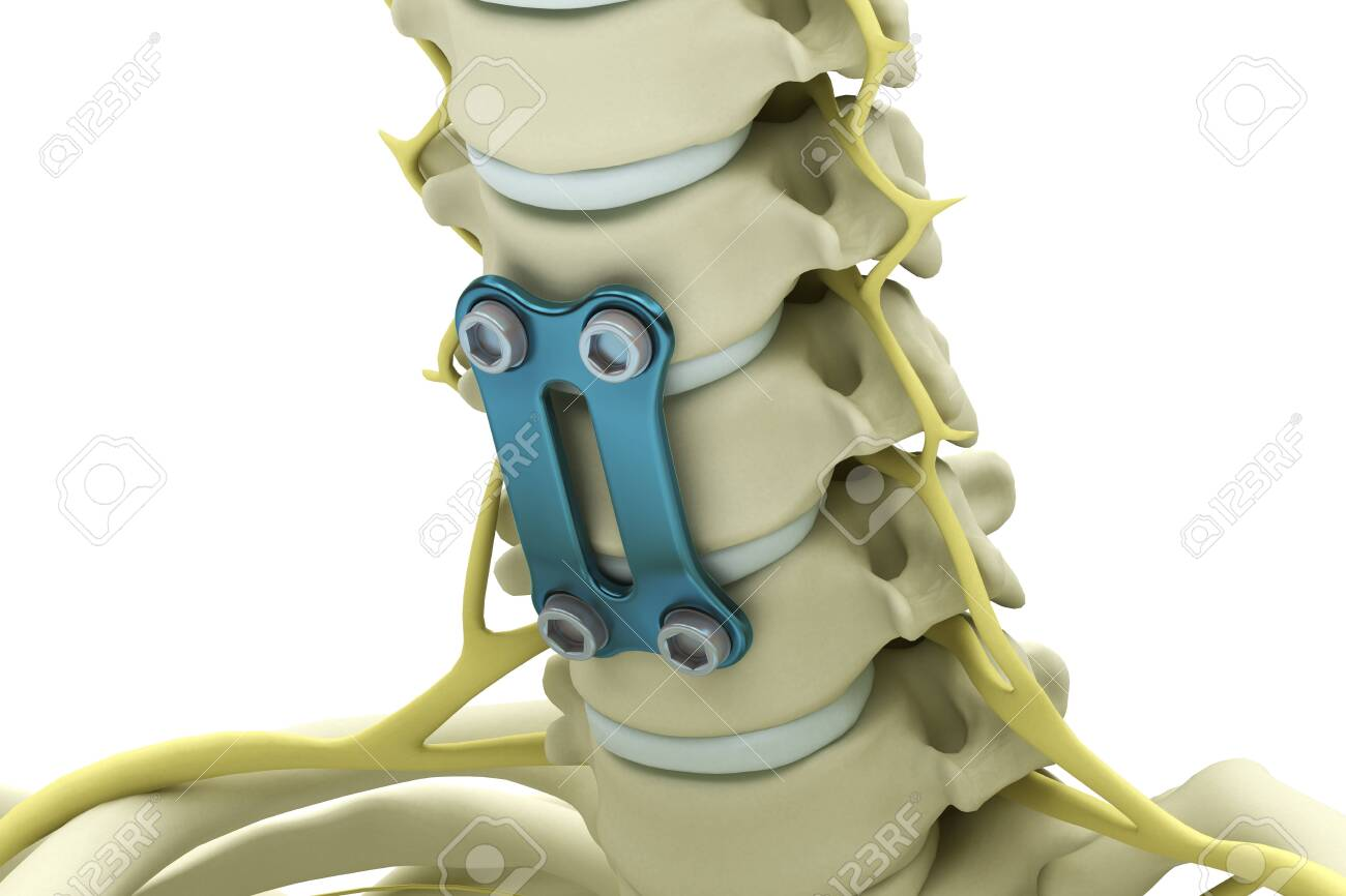 Cervical Vertebrae Fixed With A Metal Plate And Screws Isolated 1300x866
