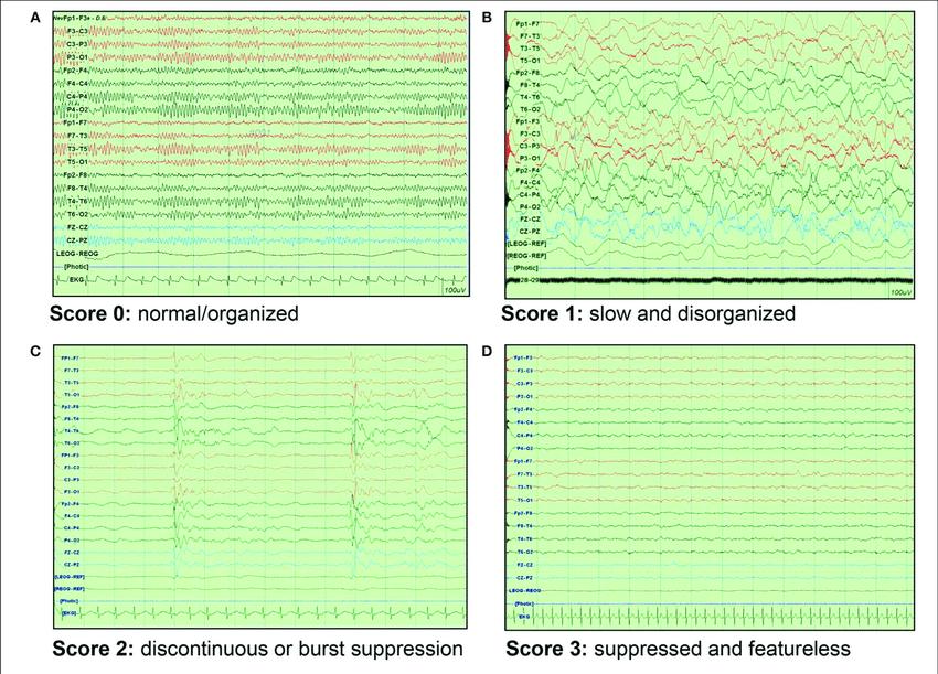 EEG background scoring A Score 0 normalorganized pattern B 850x611