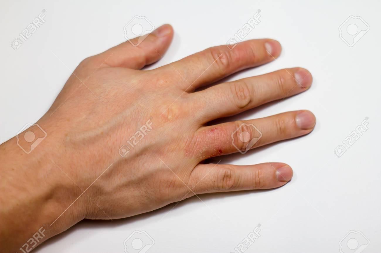 Hand Dermatitis Hand Eczema Closed On White Background Stock 1300x866