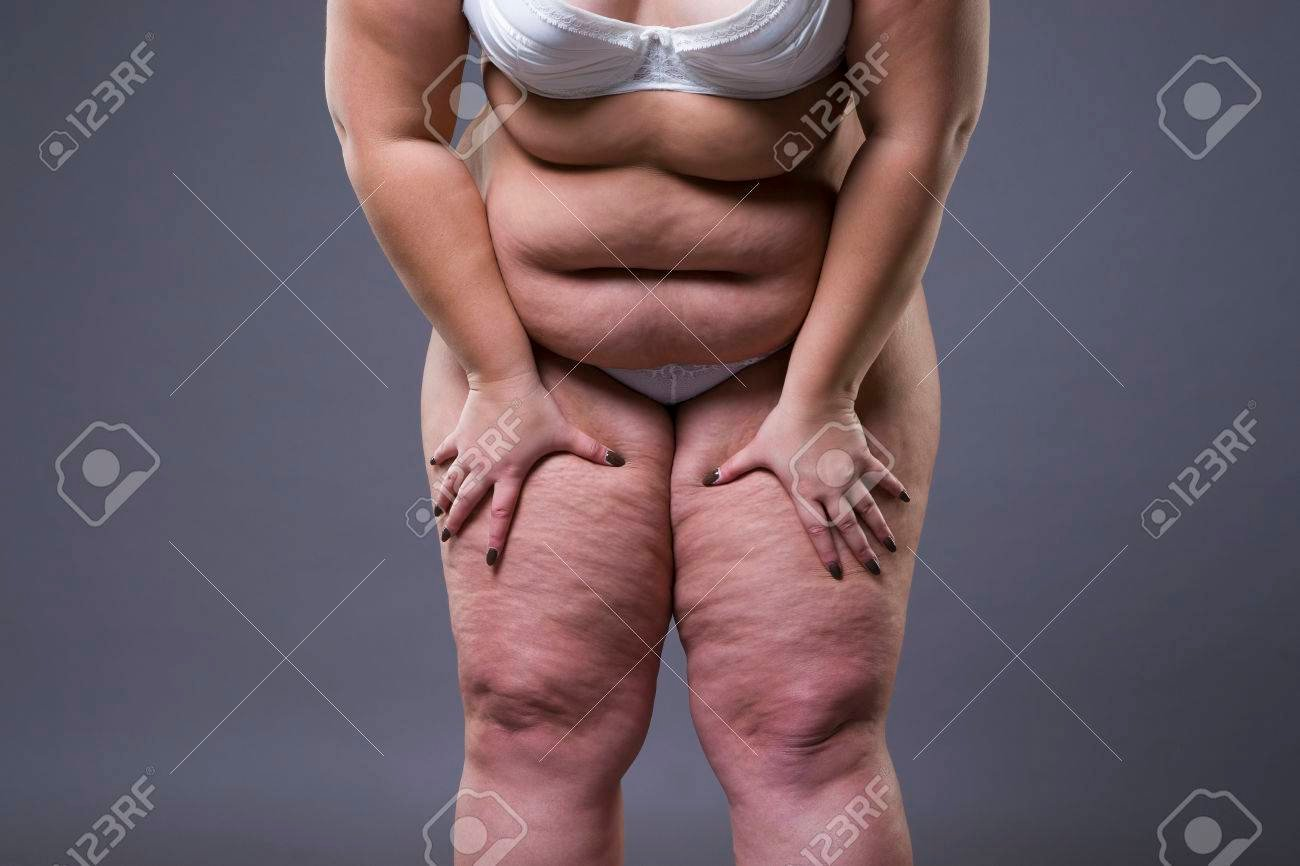 Overweight Woman With Fat Legs Obesity Female Body On Gray 1300x866
