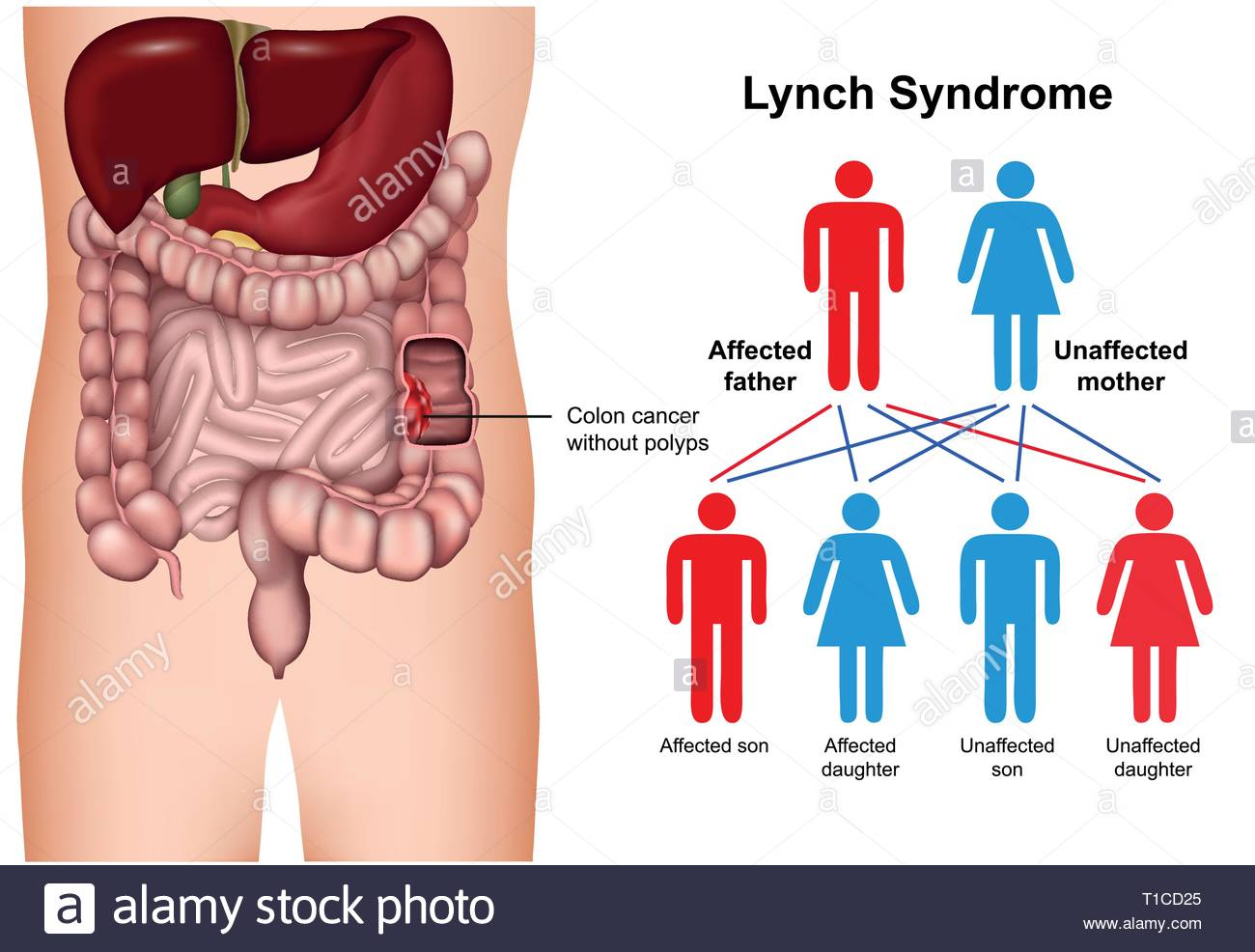 Lynch syndrome disease 3d medical vector illustration on white 1300x986