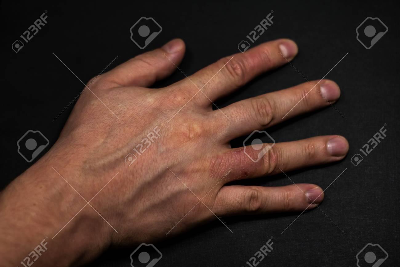 Hand Dermatitis Hand Eczema Closed On Black Background Stock 1300x866