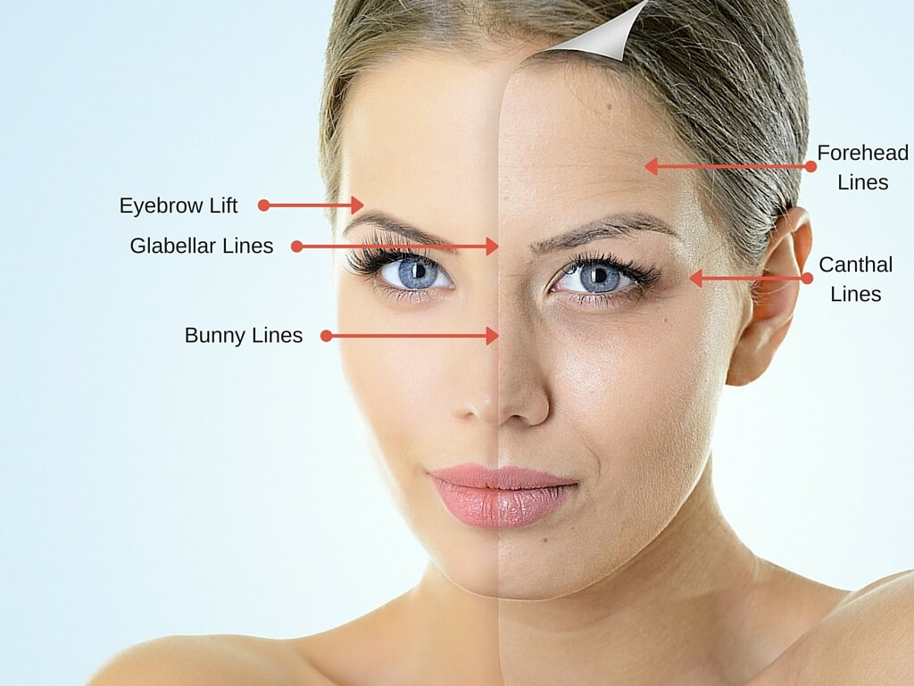 How a Dermatologist Can Make Wrinkles Fade 1024x768