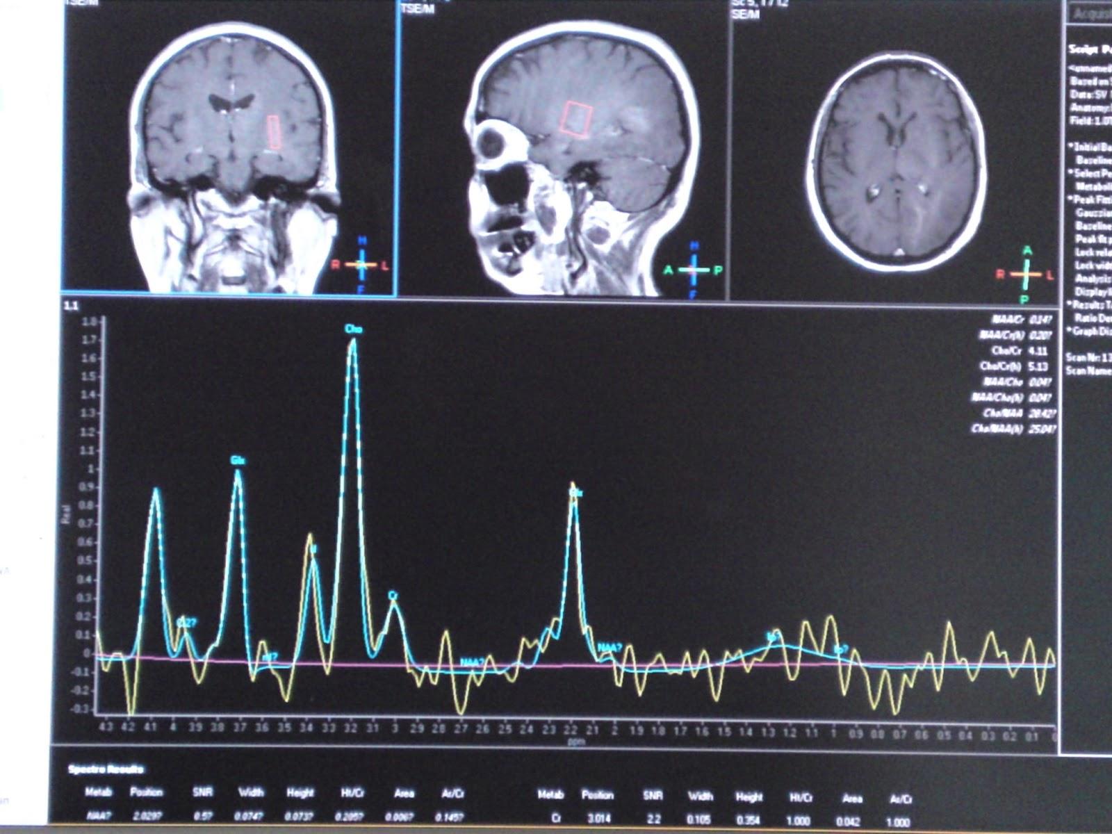 Best 56 Neurosurgery Wallpaper on HipWallpaper Neurosurgery 1600x1200