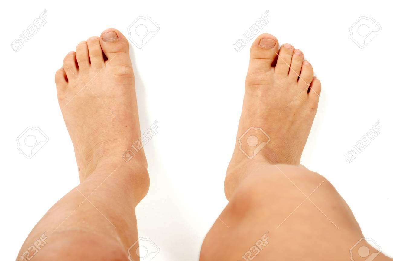 Top view Of Young Barefoot Kid With Splayfoot On White Background 1300x866
