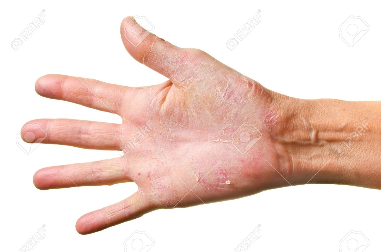 Eczema On A Hand Isolated Over White Background Stock Photo 1300x861