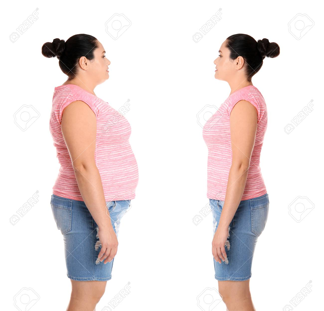 Overweight Woman Before And After Weight Loss On White Background 1300x1250