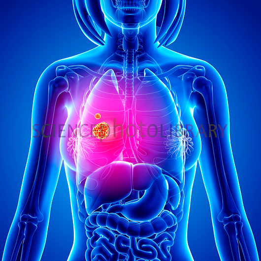 Lung cancer artwork   Stock Image F0080141   enlarged   Science 530x530