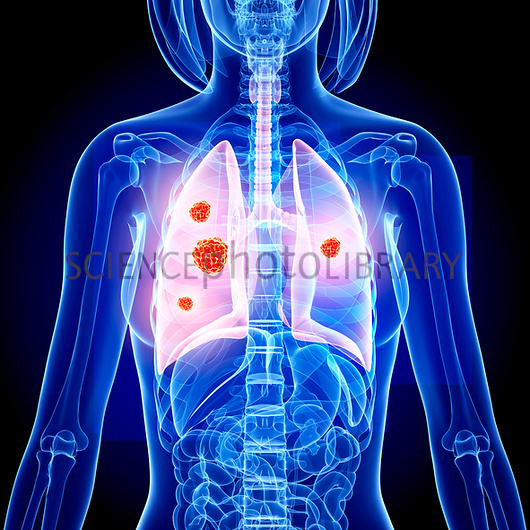 Lung cancer artwork   Stock Image F0080392   enlarged   Science 530x530