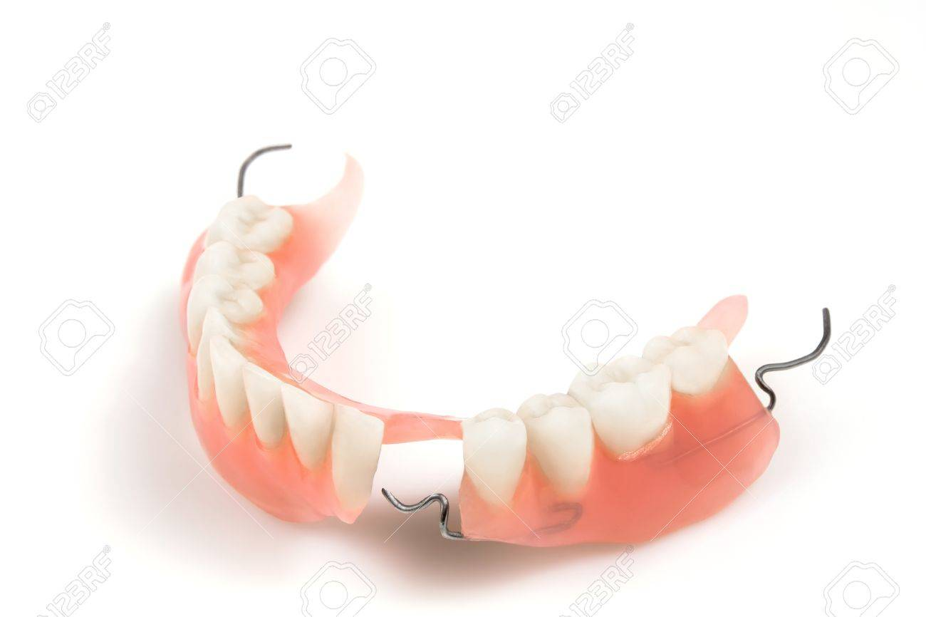 Lower Denture With Braces On A White Background Stock Photo 1300x866