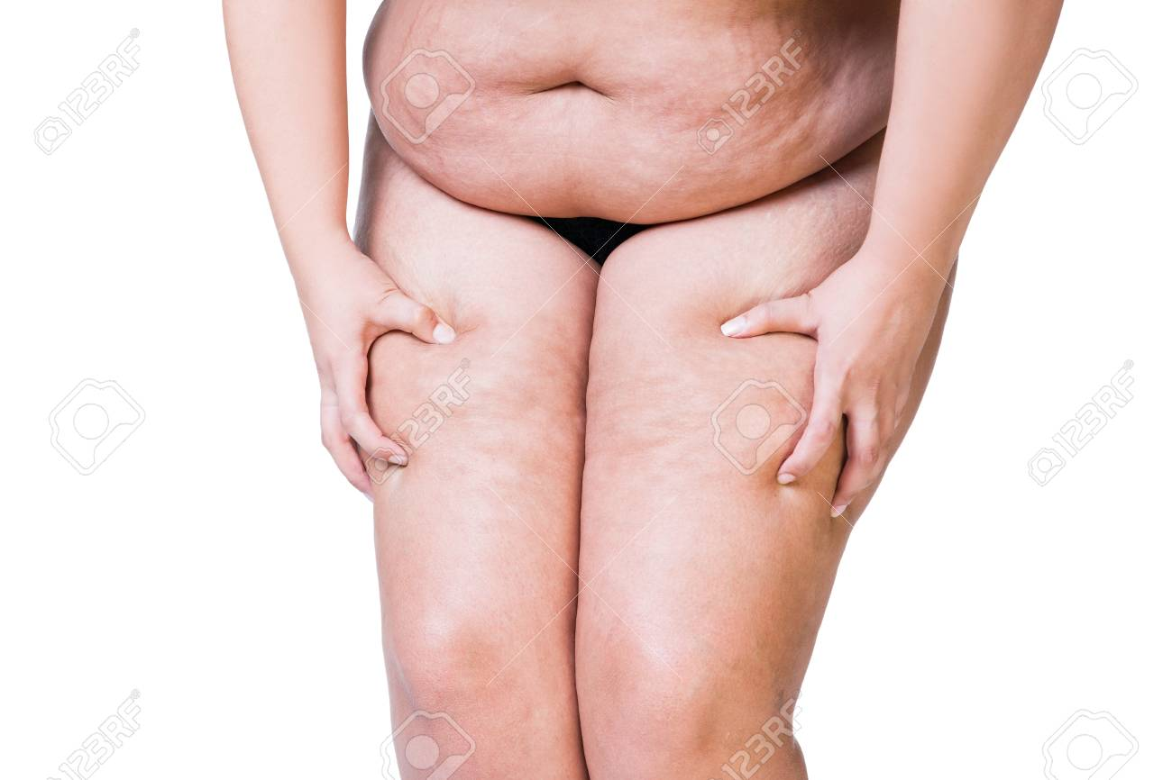 Overweight Woman With Fat Thighs Obesity Female Legs Isolated 1300x866