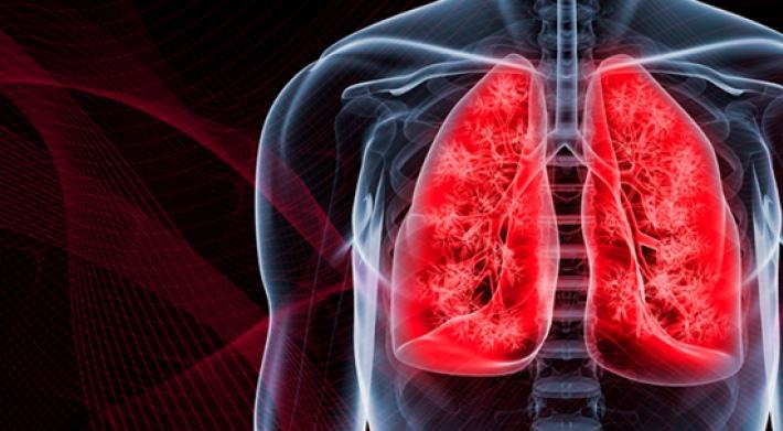 Lung Cancer Wallpaper Wallpapersafari