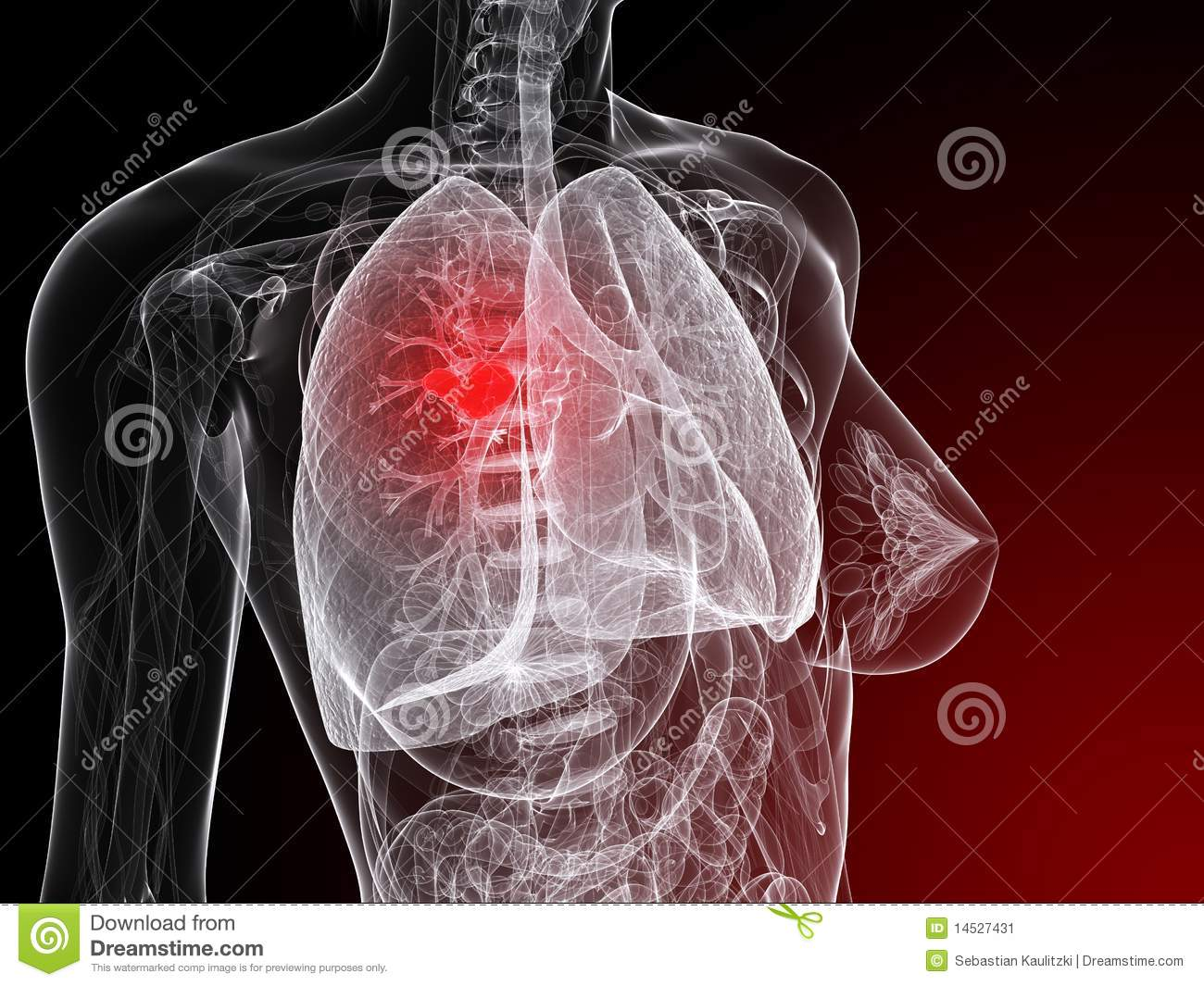 lung cancer illustration stock image image 14527431 lung cancer 1300x1065