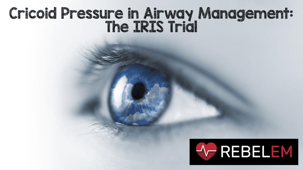 Cricoid Pressure in Airway Management The IRIS Trial   REBEL EM 1024x575