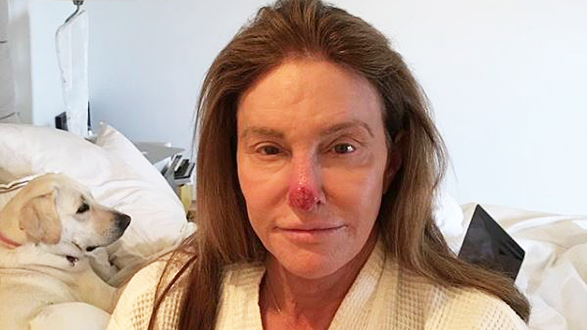 Caitlyn Jenner shares photo showing sun damage removed from nose 1920x1080