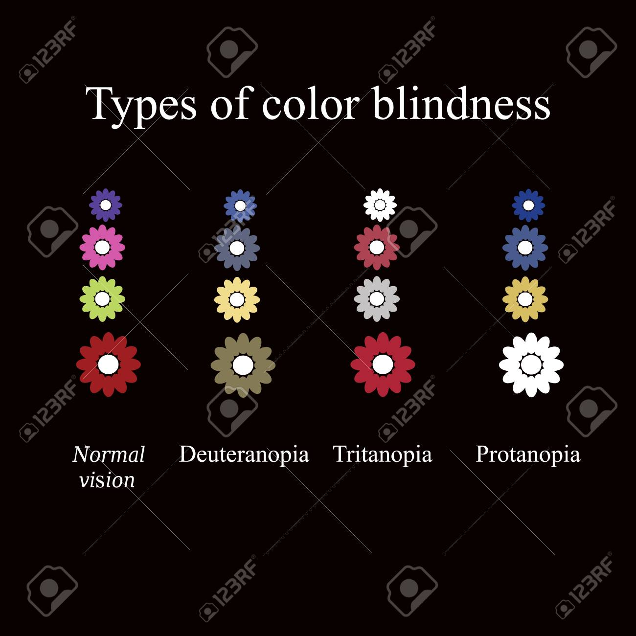 Types Of Color Blindness Eye Color Perception Vector 1300x1300