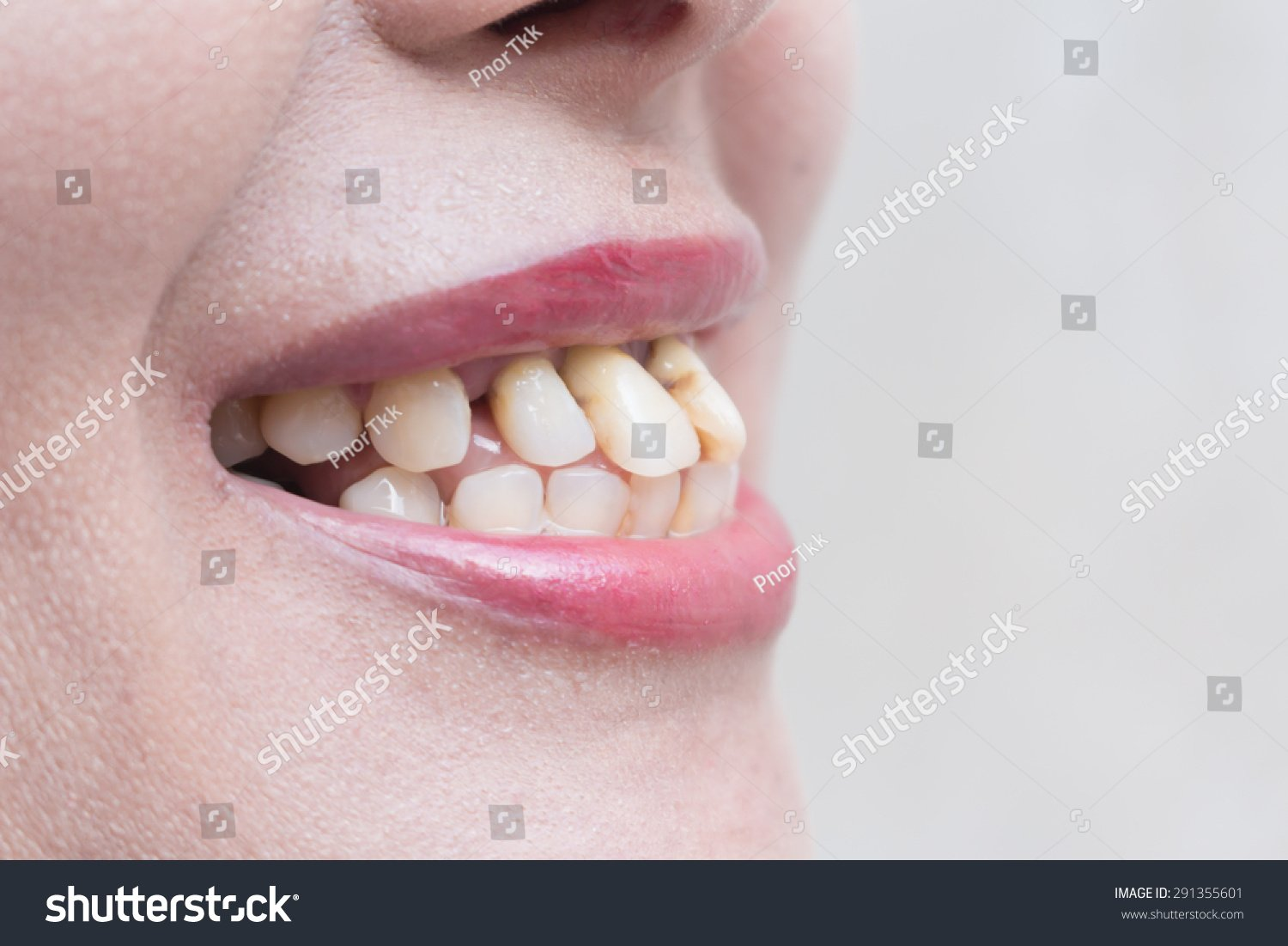 Tooth Ugly Background Healthy Tooth Stock Photo Edit Now 291355601 1500x1101