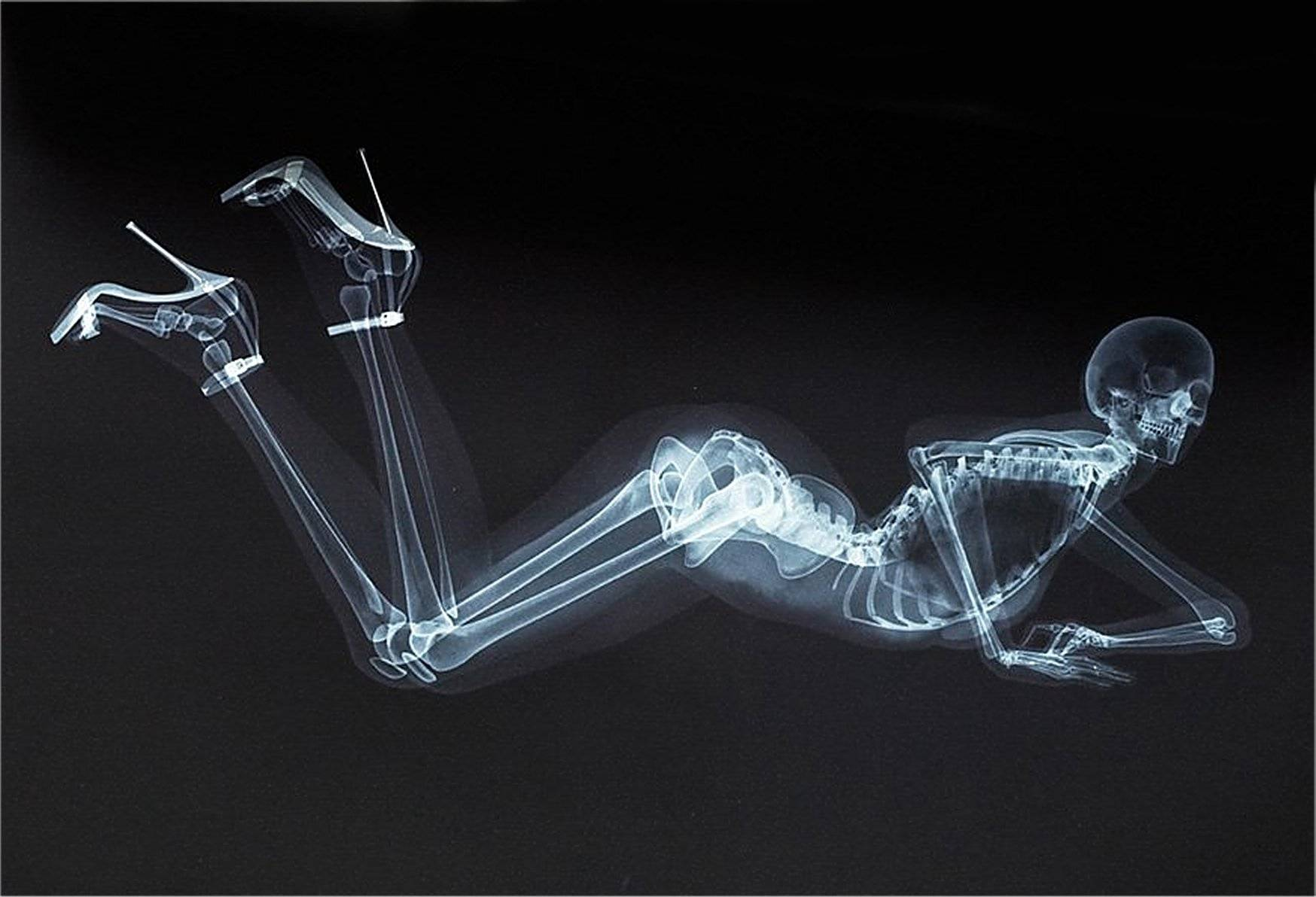 Xray Wallpapers Hd 273989 Pictures to pin 1748x1192