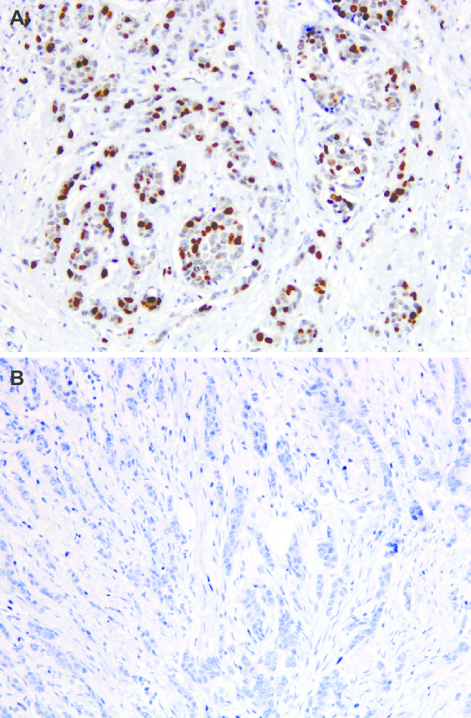 immunostaining for TOP2a in preoperative breast cancer core 684x1044