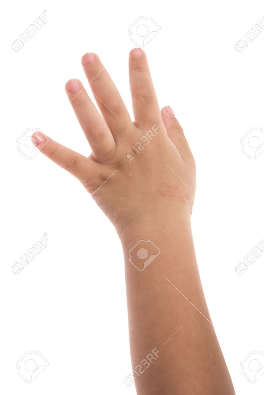 Eczema On Babys Hand Isolated White Background Stock Photo 867x1300