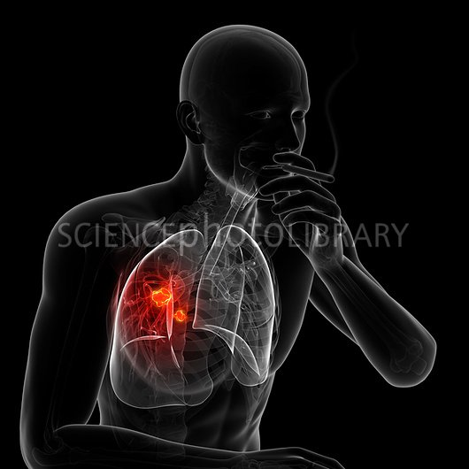 Lung cancer due to smoking artwork   Stock Image F0076162   enlarged 530x530