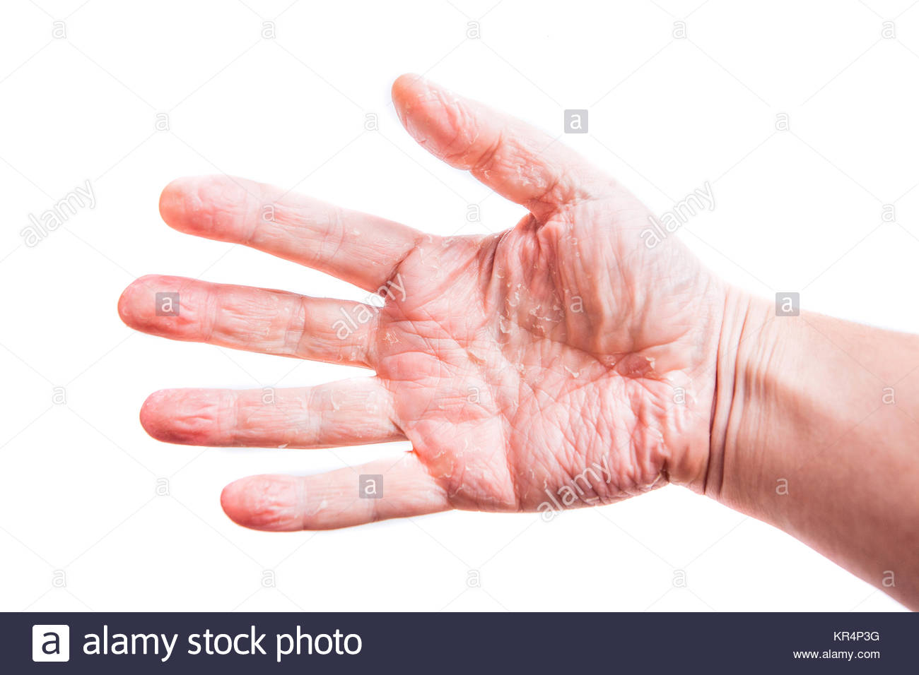 The problem with many people   eczema on hand Isolated background 1300x956