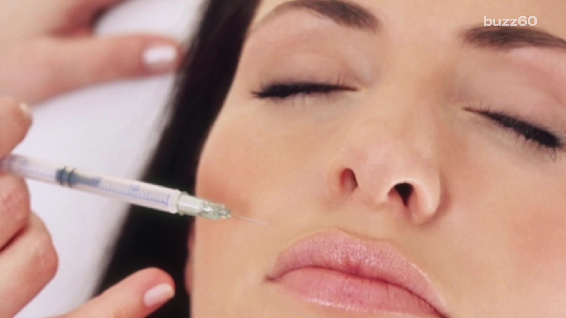 Botox could help ease your migraine 1920x1080