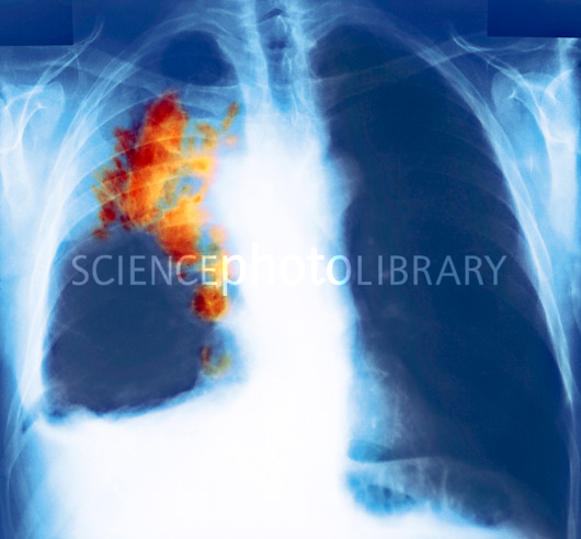 wallpaper Lung cancer kills more people Lung cancer X ray 530x492