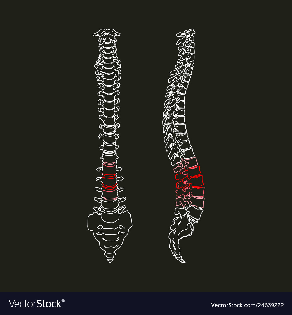 Silhouette of human spine on the black background Vector Image 1000x1080