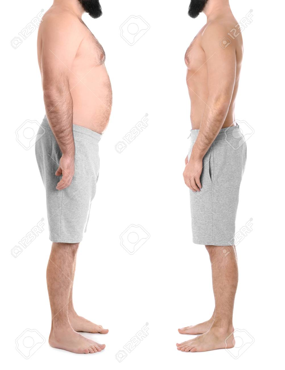 Overweight Man Before And After Weight Loss On White Background 1003x1300