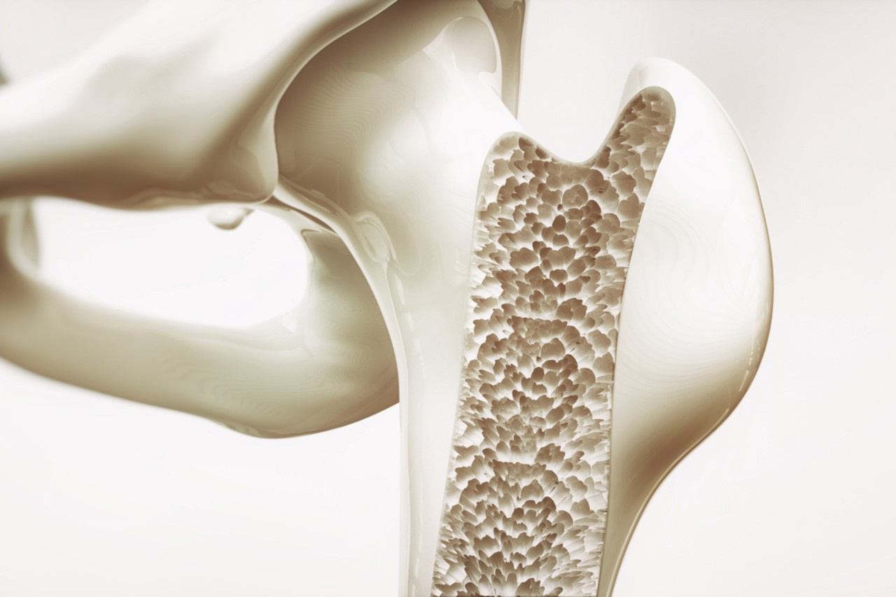 The Nuance in Treating Osteoporosis Research Updates and Approaches 1280x853