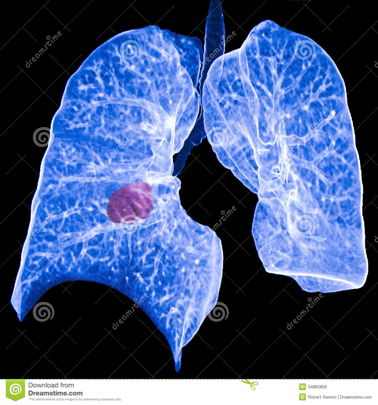 lung cancer ct royalty stock images image 34865859 lung cancer ct 1300x1390