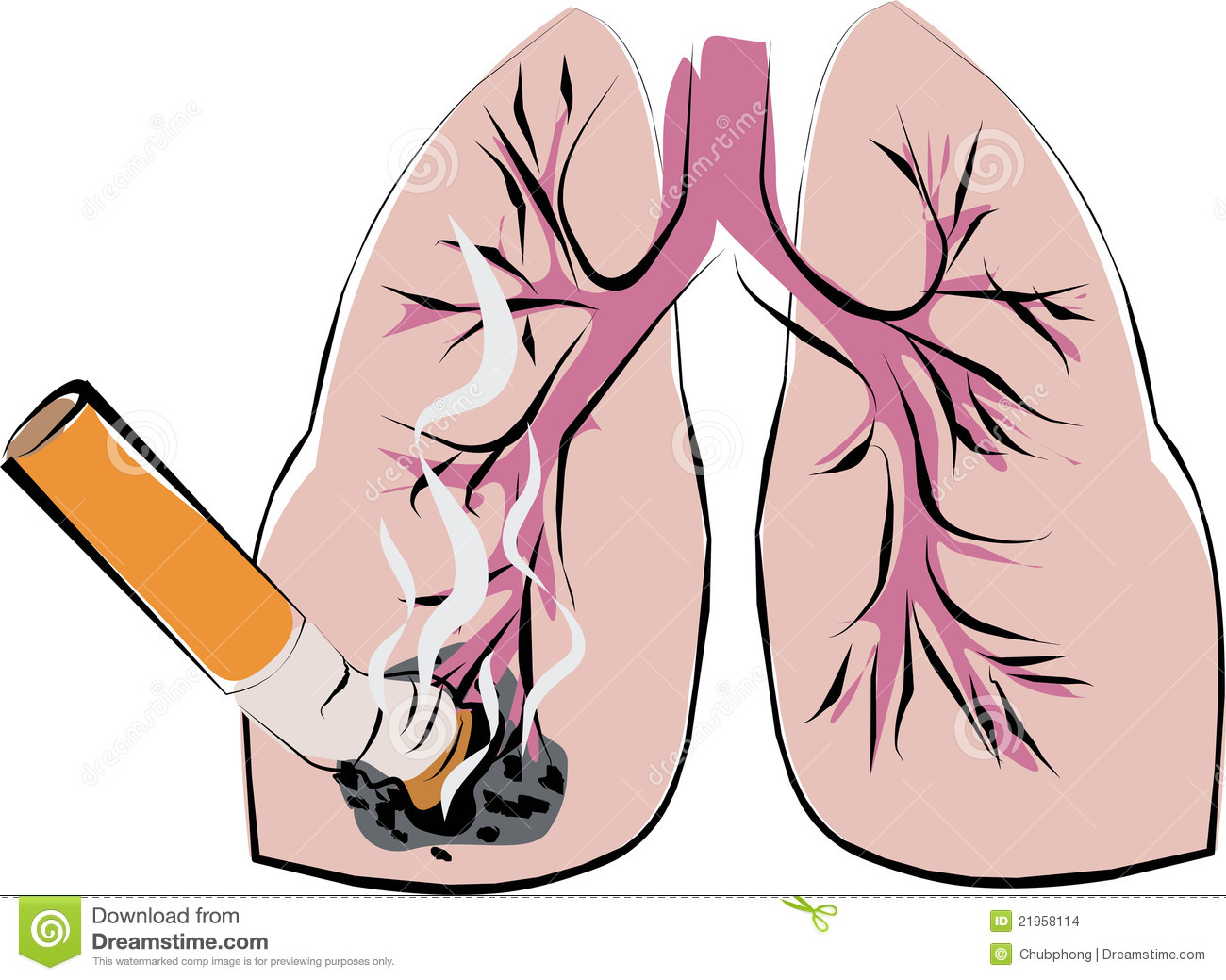 lung cancer stock images image 21958114 lung cancer 1300x1039