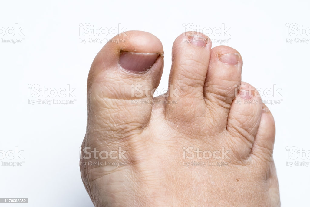 Ugly Dirty Weird Toes Close Up On White Background Stock Photo 1024x682