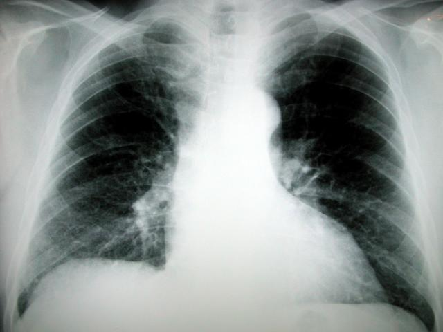 Funky Shunky symptoms of lung cancer in women 640x480