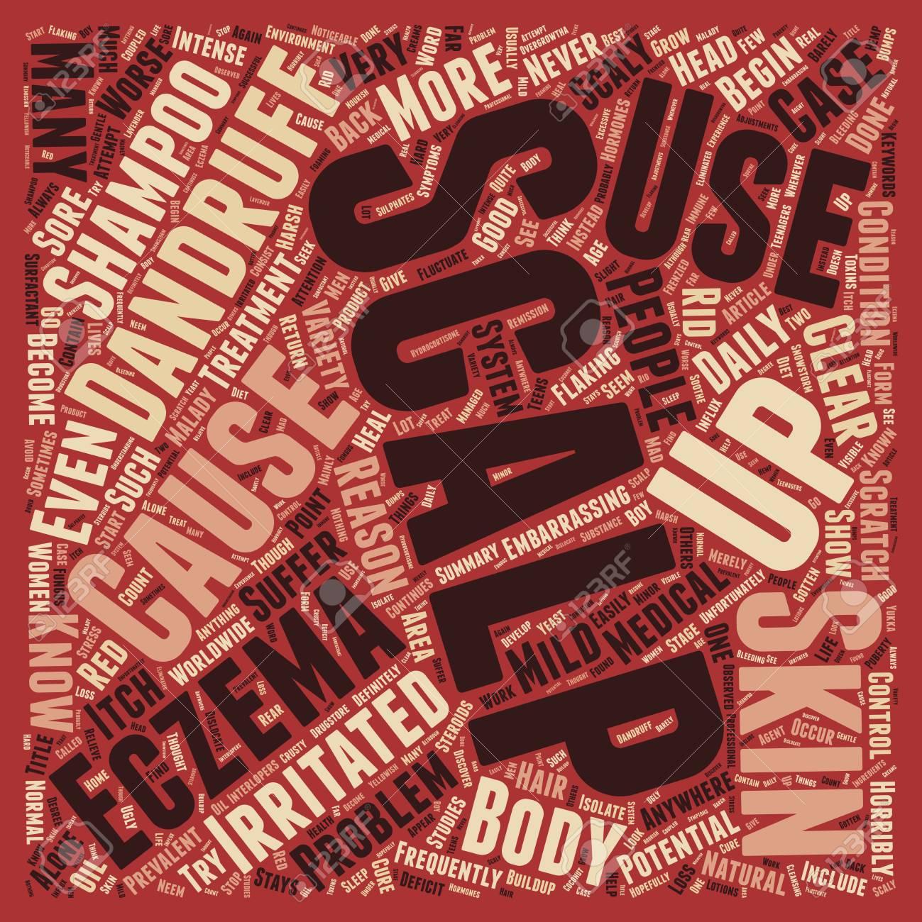Scalp Eczema 3 Text Background Wordcloud Concept Royalty 1299x1300