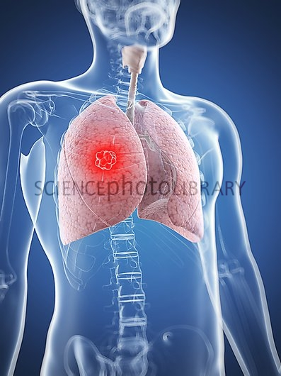 Lung cancer artwork   Stock Image F0062215   enlarged   Science 397x530