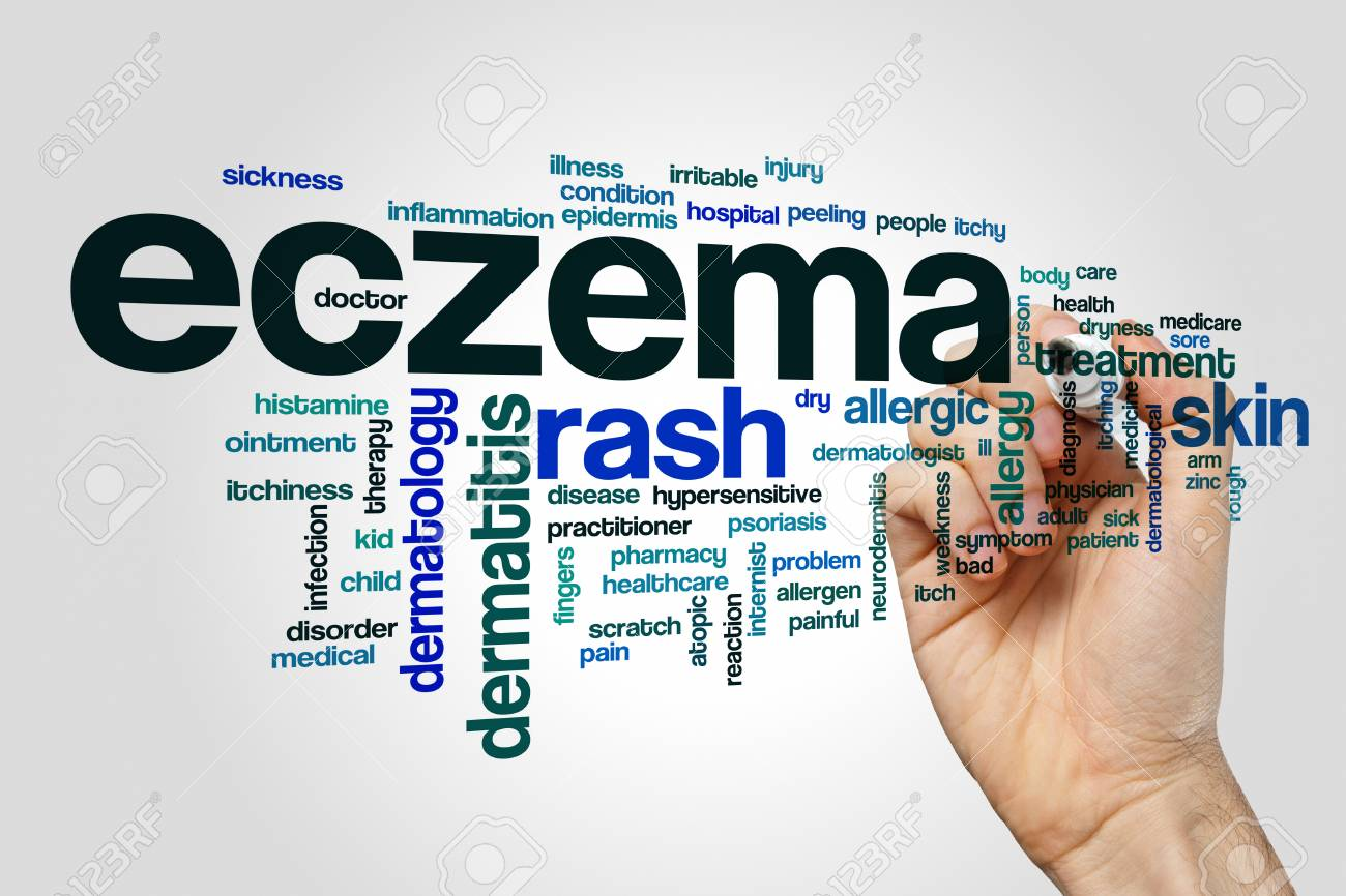 Eczema Word Cloud On Grey Background Stock Photo Picture And 1300x866
