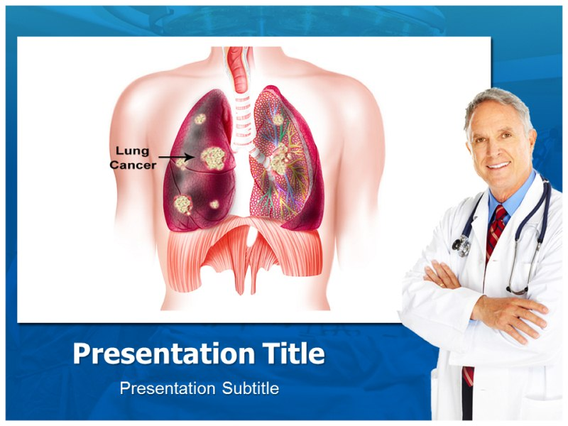 Presentation On Lung cancer Template Ppt Background On Lung cancer 800x600
