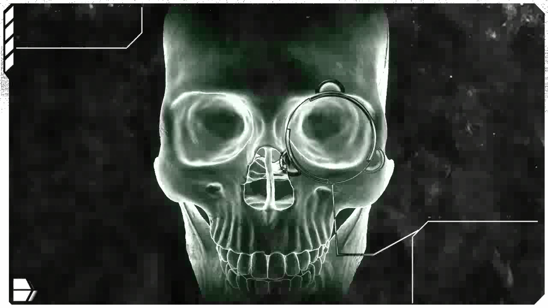 Free Download Human Skull X Ray Wallpaper 224381 1920x1080 For Your Desktop Mobile Tablet Explore 72 X Ray Wallpaper X Ray Wallpaper For Computer Cool X Ray Wallpaper X