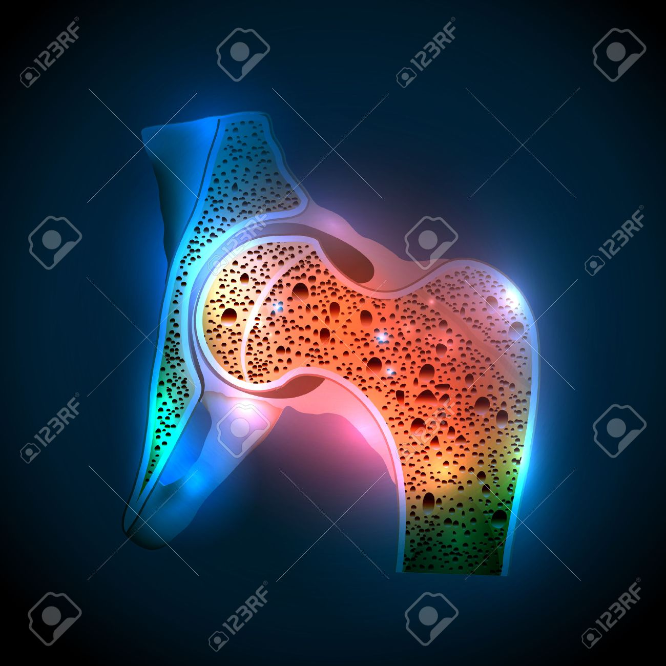 Human Hip Joint And Osteoporosis On A Abstract Blue Background 1300x1300
